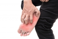 Where Does The Fungus That Causes Athlete's Foot Live?
