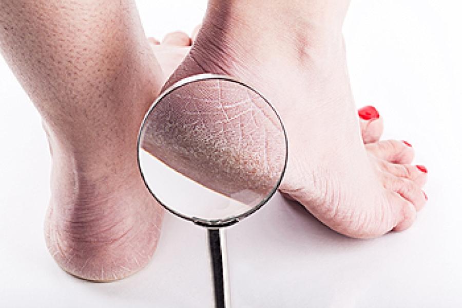 Causes of Cracked Heels