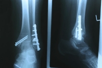 External Fixation for Ankle Fractures