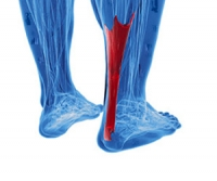 Sports and Achilles Tendon Injuries