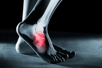 All About Tarsal Tunnel Syndrome